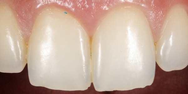 Microesferas de cremes dentais