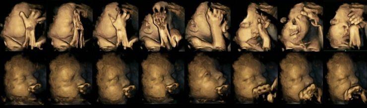 Imagens fetos de mães fumantes