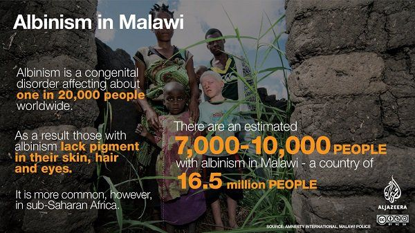 albinismo malawi