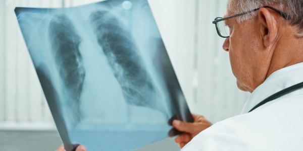 Tuberculose: sintomas, transmissão e prevenção