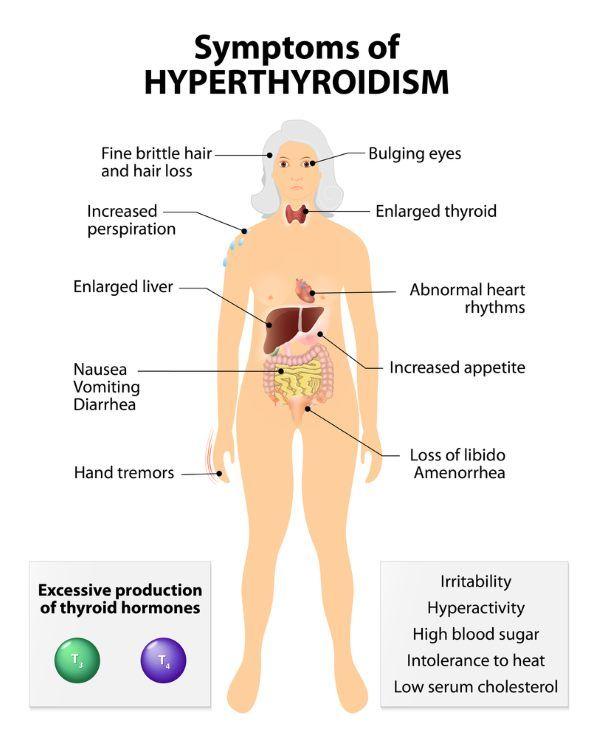 hipertireoidismo sintomas