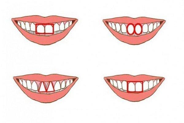 formato dentes tipos