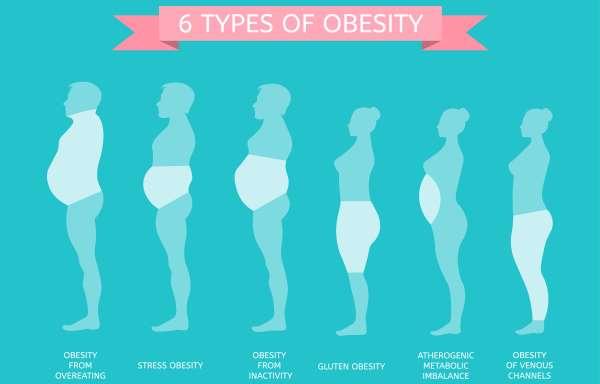 tipos de obesidade