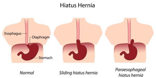 Hérnia de Hiato