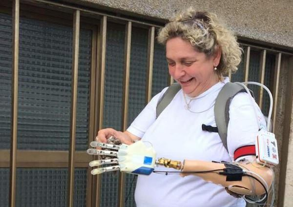 mao bionica 3