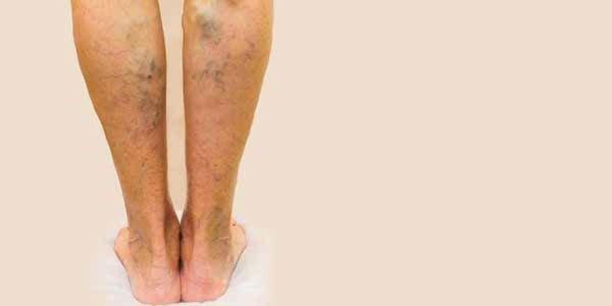 coágulo de sangue na perna da virilha ao tornozelo