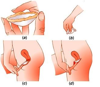 diafragma como usar