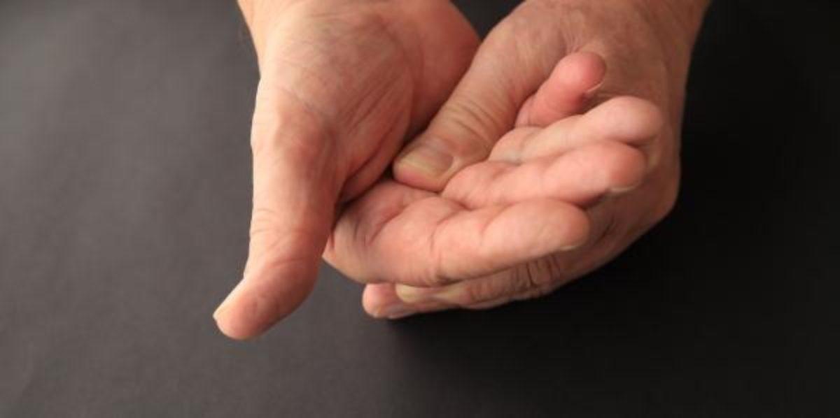 Queimação o mãos que nas e causa dor