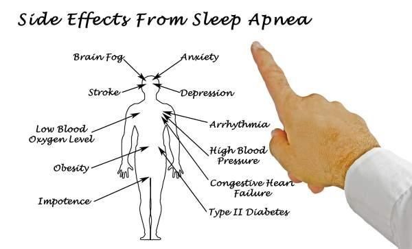 apneia do sono 2