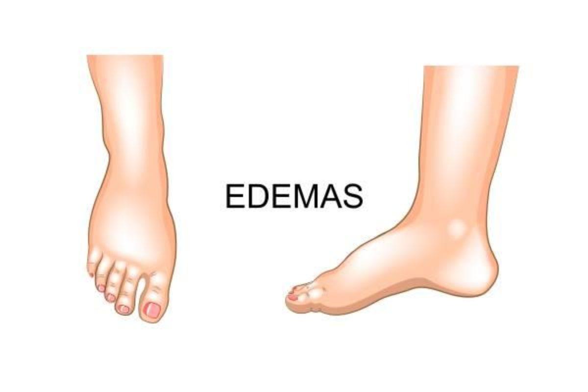 E remédios naturais pernas tornozelos o inchaço das para