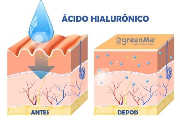 ácido hialurônico