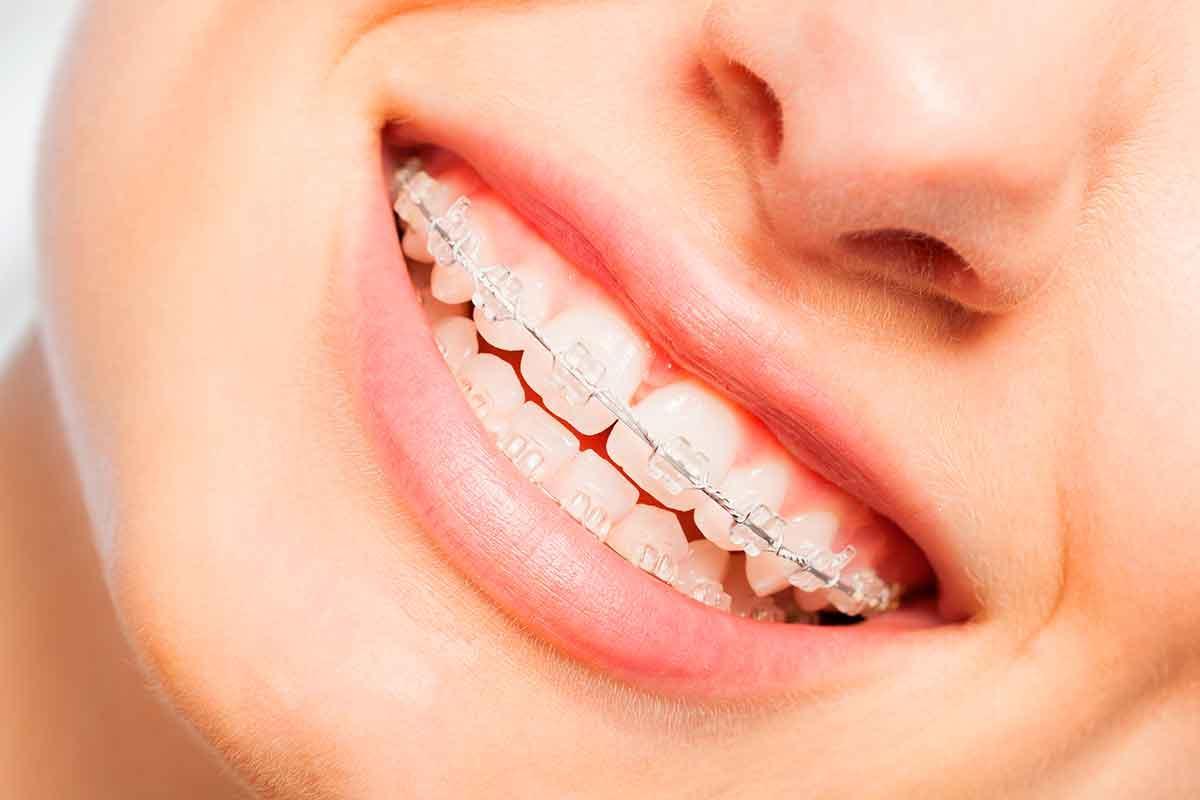 má-oclusão dentária