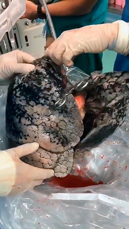 pulmoes fumante cirurgia