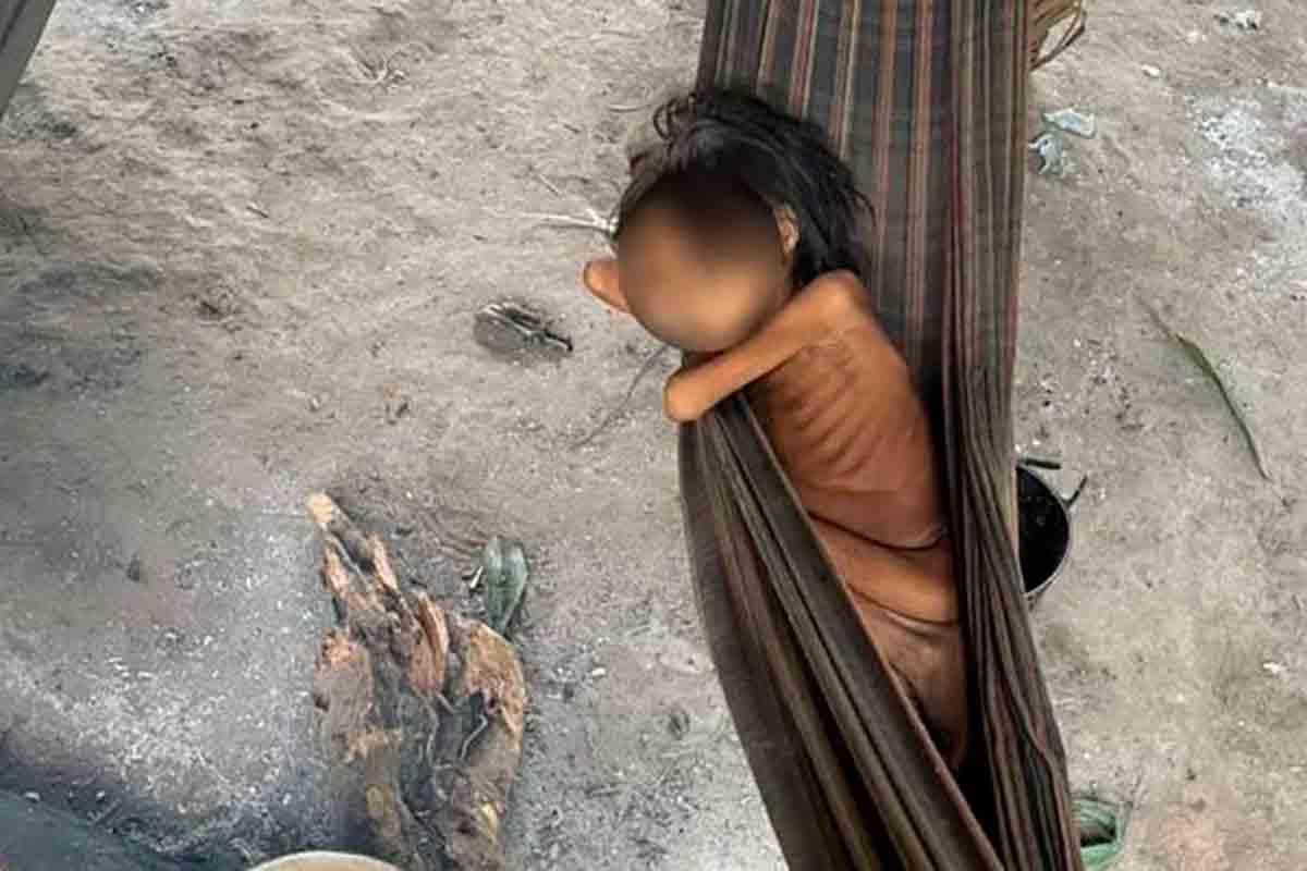 Além de Covid, casos de malária e verminose explodem entre os Yanomamis